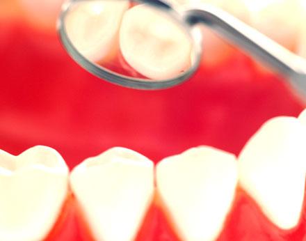 Anbieter-Check: Zahnersatz aus dem Ausland